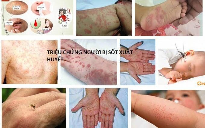 Bạn đã hiểu gì về bệnh sốt xuất huyết?